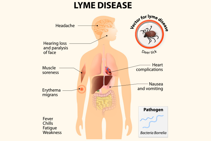frank-magliochetti-report-symptoms-of-lyme-disease